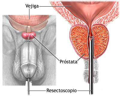 low testosterone herbal remedy
